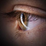 EJP Rare Diseases consortium awarded 1.4 M€ to validate novel treatment for rare ophthalmology conditions